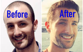 Propecia Shedding After 1 Year by Update Side Effects Of Propecia Finasteride Youtube