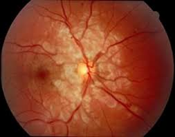 1A Superficial Retinal Ischemia Cotton Wool Spots Are Seen In The Distribution Of Radial Peripapillary Capillary