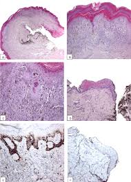 subungual melanoma in association with subungual epidermoid inclusions