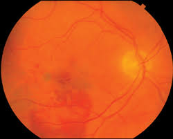 A This Patient Had 20 400 Vision With Thick Submacular Hemorrhage B One Month After Surgery The Improved To 60 Excellent Displacement Of