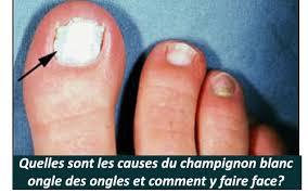 pied de le blanc quelles sont les causes du chignon blanc ongle des ongles et
