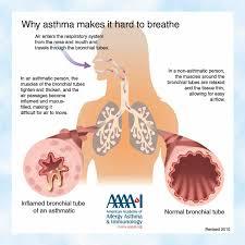 Pulmonary Fibrosis Lung Transplantation Beginning Testing
