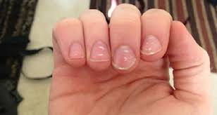 what are the white dots on my nails mean extreme ideaz