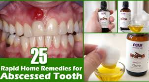 Best Home Reme s for Abscessed Tooth My Health Tips