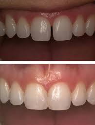 Cosmetic Dentistry St Paul Dental Bonding
