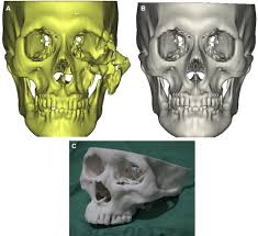 Orbital Floor Fracture Non Blowout by Mirror Imaged Rapid Prototype Skull Model And Pre Molded Synthetic