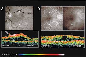 Optical Coherence Tomography Of Idiopathic Macular Epiretinal Membranes Before And After Surgery