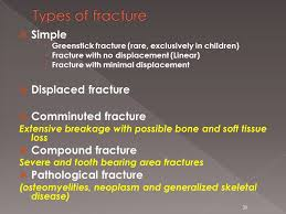 Orbital Floor Fracture Icd 9 by Babak Saedi Md Otolaryngologist Tehran University Of Medical
