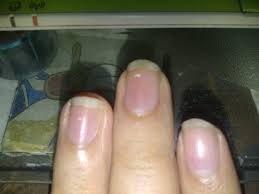 myth white dots on nail someone have a crush on you mythistory