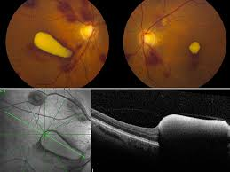 Valsalva Retinopathy With Sub ILM Hemorrhages In The Setting Of Pancytopenia And Pneumonia