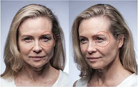 Infrared Lamp Therapy Side Effects review before after photos zensation 3 in 1 skin rejuvenating