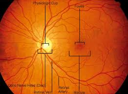 What Is A Macular Hole