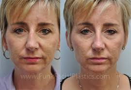 Orbital Floor Fracture Treatment by Trauma Surgeon Broken Nose Surgery Cheek U0026 Eye Areas
