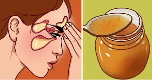 Say Goodbye to Painful Stuffed Sinuses With Just e Tablespoon of This Homemade Mix