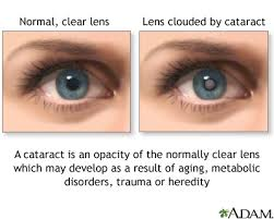 Christmas Tree Cataracts Causes by Cataract Pictures