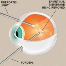 Epiretinal Membrane Surgery