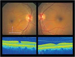 A Pseudohole As Its Name Suggests Can Masquerade Full Thickness Macular Hole