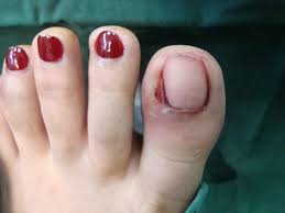 Toenail Separated From Nail Bed by 14 Toenail Separating From Nail Bed 10 Nail Symptoms And