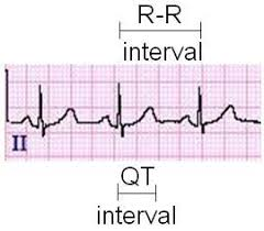 rr interval normal range qt interval on a 12 lead tracing learntheheart