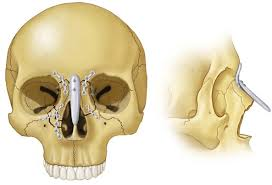 Orbital Floor Fracture Icd 9 by 17 Diagnosis And Treatment Of Midface Fractures Pocket Dentistry