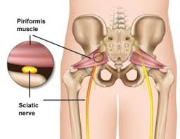 Pelvic Floor Muscle Spasm by How To Correctly Treat Piriformis Syndrome U2013 Squat University