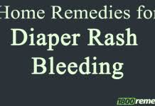 Home Treatment for Diaper Rash It s Reliable to Use