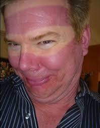 best 25 funny sunburn ideas on pinterest edward casey sunburn