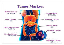 cea marker normal range cea tumor marker normal ranges elevated levels lung cancer
