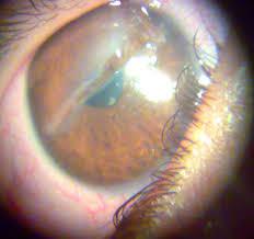 Corneal Laceration Iris Prolapse