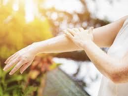 Uv Lamp Vitamin D Supplement by Vitamin D For Sunburn Drweil Com