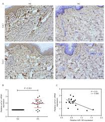 100 Col 1 MicroRNA85 Regulates Transforming Growth Factor And Collagen