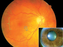 This Patient Has A Mild Epiretinal Membrane Green Bracket And Slight Amount Of Wrinkling Blue Arrow The Patients Best Corrected Vision 20 60
