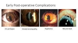 Subsequent 11 Early Post Operative Complications Iris Prolapse