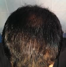 Propecia Shedding 2 Weeks by Hair Loss Help Text Topic