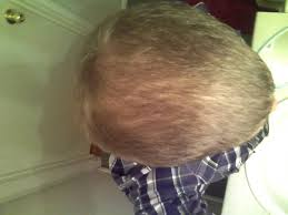 Rogaine Foam Shedding Phase by Hair Loss Help Forums Irishpride86 Hair Treatments Timeline With