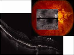Spectral Domain OCT Of A Myopic Fundus With Prominent Hyperreflective Transmission Through Lacquer Cracks And Irregularities In The Photoreceptor Layer