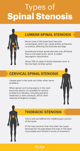 Types Of Chair Legs by Spinal Stenosis Symptoms Causes U0026 Treatments Dr Axe