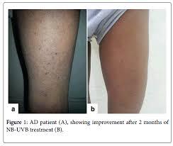 estimation of calcidiol level in serum of atopic dermatitis