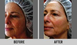 Pumpkin Enzyme Peel Before And After by Photo Gallery Rhonda Allison