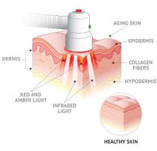 Infrared Lamp Therapy Benefits by Baby Quasar Plus Light Therapy Device