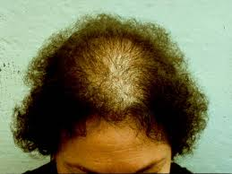 Minoxidil Shedding Phase Pictures by Health From Trusted Sources Hair Loss Alopecia