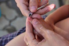 White Spots On Nail Beds by White Spots On Fingernails Stock Photo Image 77744619