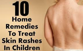 Top 10 Home Reme s To Treat Skin Rashes In Children