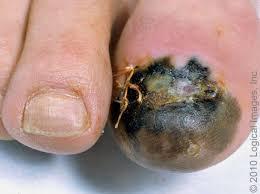 subungual melanoma finger