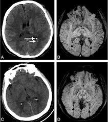 Evaluation Of Traumatic Subarachnoid Hemorrhage Using Susceptibility