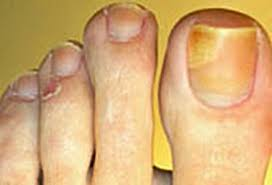 best toenail fungus treatment for yellow nails black spots at home