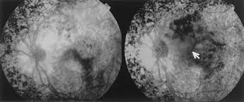 Fluorescein Angiography Of The Left Eye Patient A Preoperatively And Right