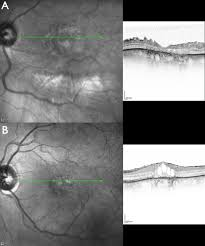 Cystoid Macular Oedema And Epiretinal Membrane Formation During