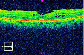 Preoperative Evaluation And Postoperative Management For Epiretinal Membrane Surgery