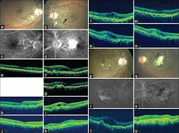 At Presentation Color Photograph CF A And B Fundus Fluorescein Angiography C D Showed Angioid Streak White Arrow In Both